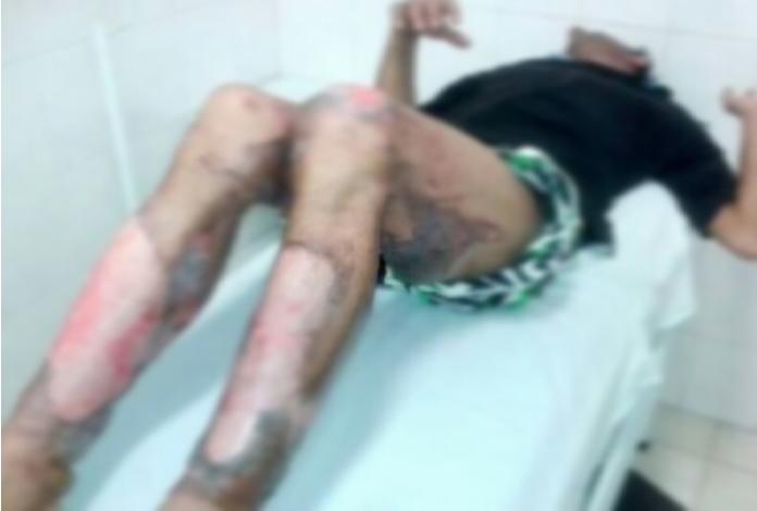 Homem teve 80% do corpo satingido pelas queimaduras